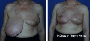 Photo avant et après une reconstruction Reconstruction du lambeau de grand dorsal