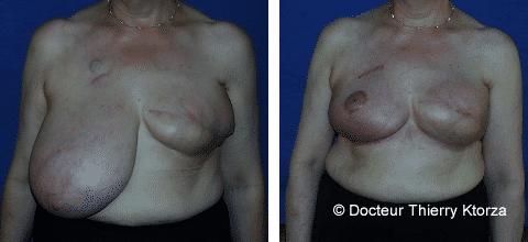 Photo d'une reconstruction par prothèse mammaire avant et après l'intervention