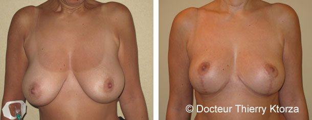 reduction-mammaire-hypertrophie-photo-avant-apres