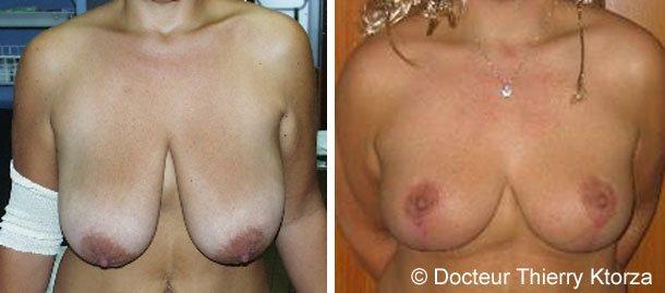 Photo avant et après une correction de ptose mammaire et réduction mammaire de 450 grammes par sein