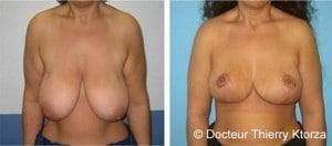 Photo avant après une réduction mammaire par le Docteur ktorza