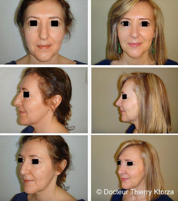 Rhinopalstie chez une femme de 40 ans correction pointe et bosse du nez