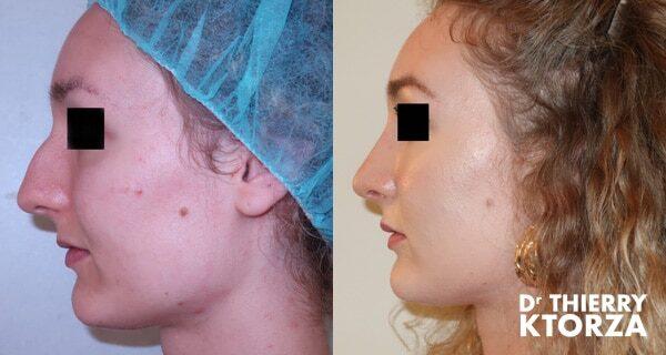 Photos avant et après une rhinoplastie