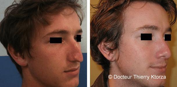 Photo d'une chirurgie du nez chez un jeune-homme avec correction d'un nez pointu