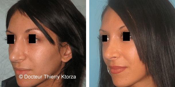 Photo d'une rhinoplastie avant et après chez une patiente de 23 ans par voie interne