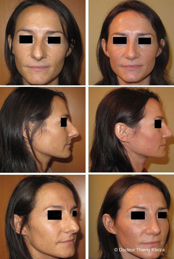 Photo avant après rhinoplastie correction pointe de nez projetée