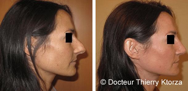 Photo d'une rhinoplastie avant et après avec réduction de la pointe et suppression de la bosse