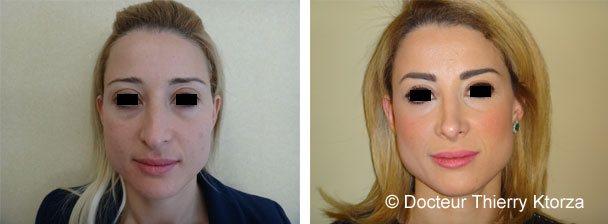 Photo d'une rhinoplastie avant et après