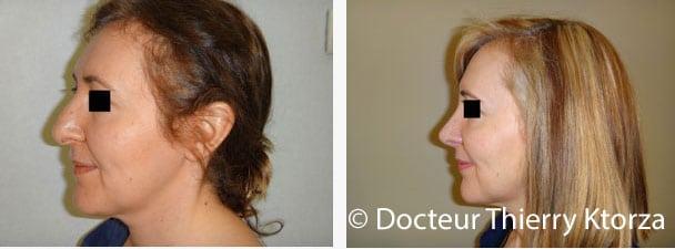 rhinoplastie-correction-bosse-nez-avant-apres