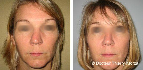 Photo avant et après d'une rhinoplastie suite à une déviation post-traumatique du nez
