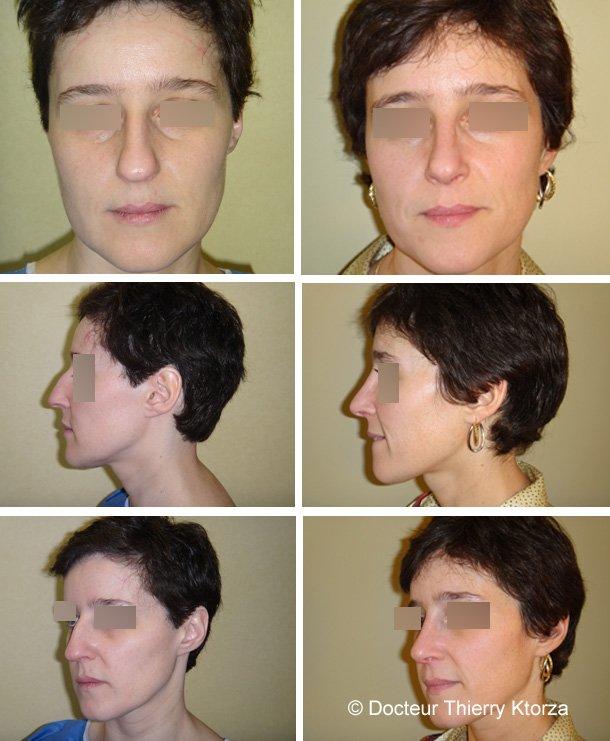 Rhinoplastie photos avant et après traitement d'une pointe de nez par le docteur Ktorza