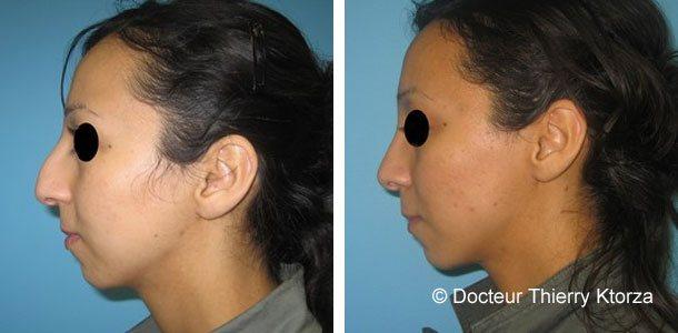 Photo avant et apres une rhinoplastie avec ré-équilibre du visage