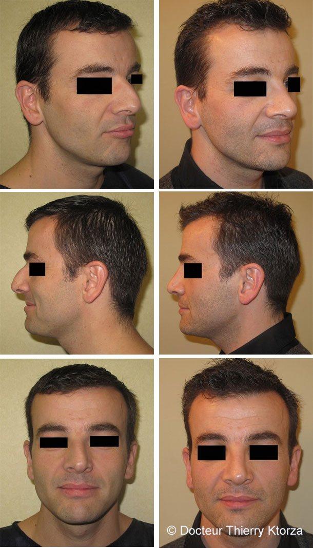 les spécificités de la rhinoplastie chez l'homme