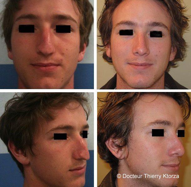 Photo avant et après d'une rhinoplastie chez un jeune homme