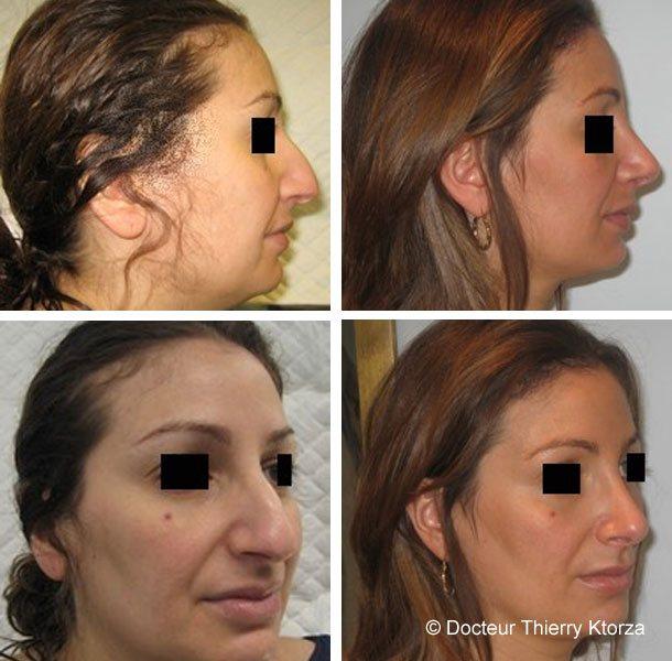 Rhinoplastie et lipoaspiration du double menton