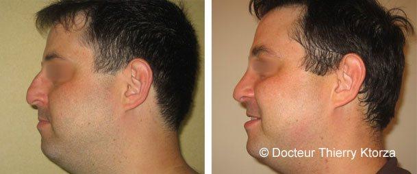 Photo avant et après d'une rhinoplastie difficile sur un homme avec la peau épaisse