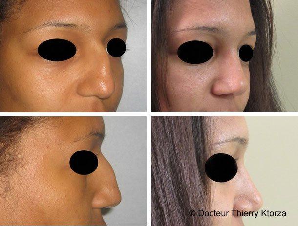 Photo avant et après une rhinoplastie et bosse importante du nez