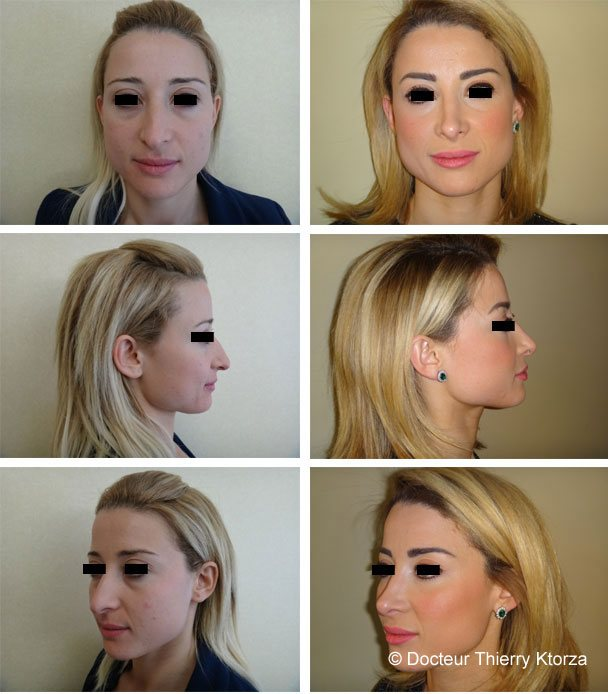Photo avant et après d'une rhinoplastie pour une pointe de nez tombante et hyperprojetée