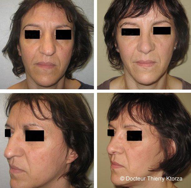Photo avant et après une rhinoplastie pour une pointe de nez tombante