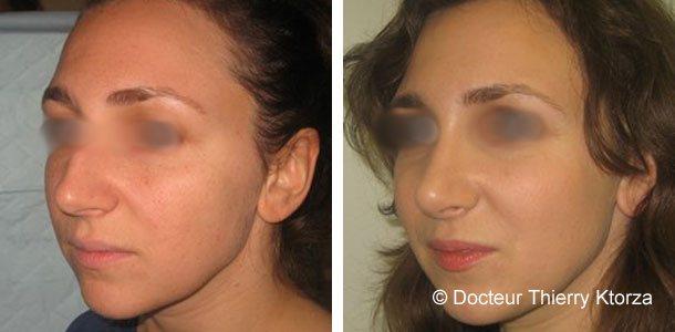 Photo avant et après d'une rhinoplastie avec recul de la pointe du nez