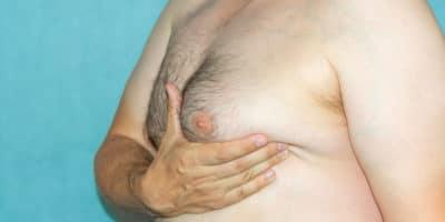 Les seins chez les hommes : les solutions 1