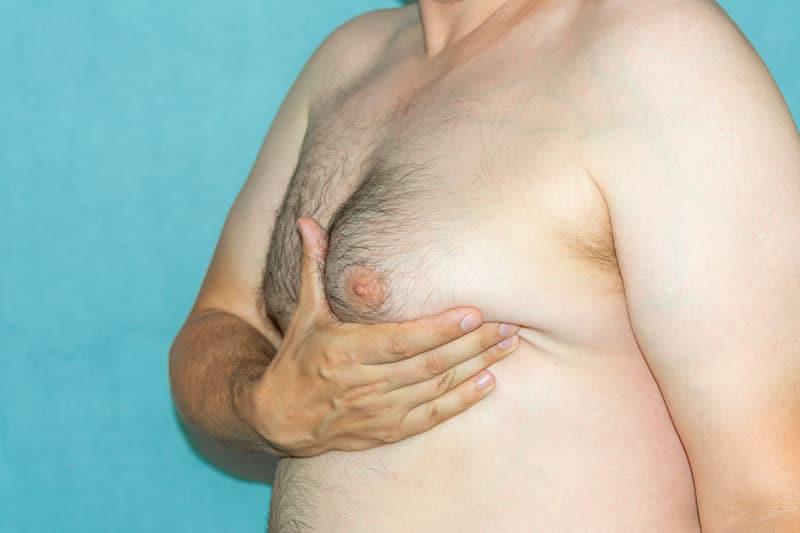 Les seins chez les hommes : les solutions