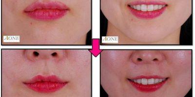 La chirurgie esthétique du sourire : une nouvelle tendance en Corée du sud ?