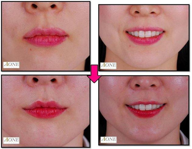 La chirurgie esthétique du sourire (Smile Lipt)  une nouvelle tendance en Corée du sud ?