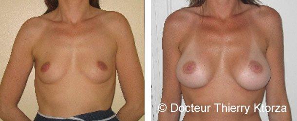 Témoignage d'une patiente après une augmentation mammaire de 280 ml
