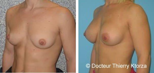 Témoignage d'une patiente après une augmentation mammaire devant le muscle