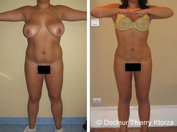 Témoignage d'une patiente après une liposuccion