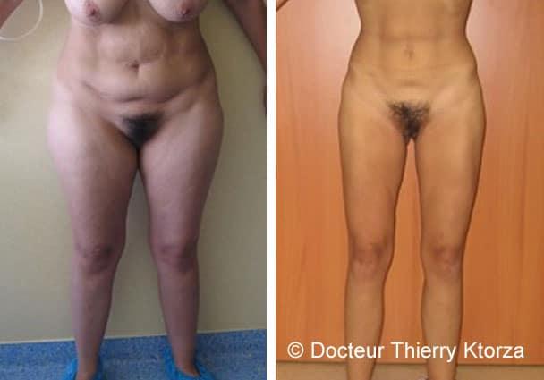 Témoignage d'une patiente après une liposuccion suivi d'un régime