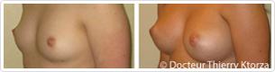 avant/apres augmentation mammaire
