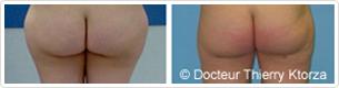 Photo avant/après liposuccion