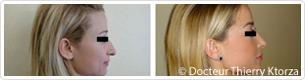 Photo avant/après rhinoplastie