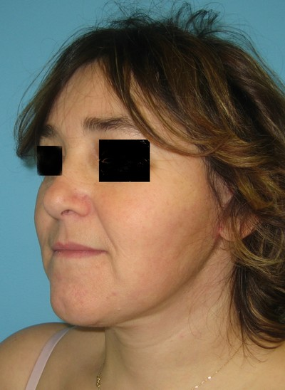 lifting du cou - lifting cervicofacial - lifting visage